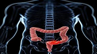 20140331130046-cancer-colon.jpg