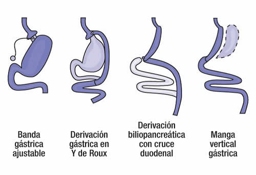 20170106132726-cirugia-bariatrica.jpg