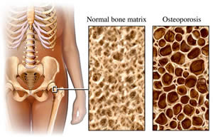 20100220090016-osteoporosis.jpg