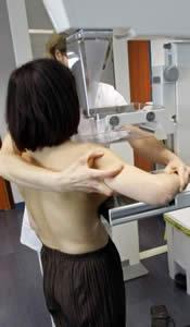 20100331095447-mamografia01.jpg