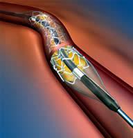 20101024121109-angioplastia.jpg