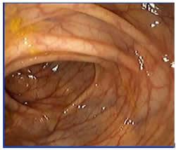 20110515134439-colitis-ulcerosa.jpg