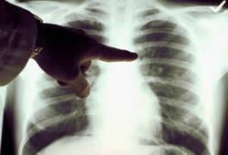 20111208122312-pulmon-rx.jpg