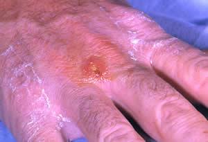 20130502122103-tularemia.jpg