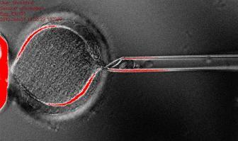 20130516102224-extraccion-nucleo-ovulo.jpg