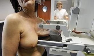20140212135501-mujer-sometida-mamografia.jpg