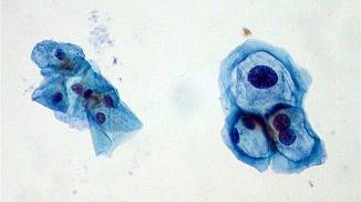 20150706085957-papiloma-virus.jpg