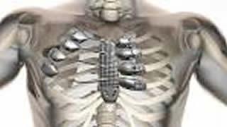 20160220114005-protesis-toracica.jpg